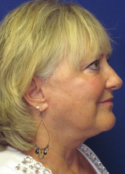 Facelift/Mini-Facelift Gallery - Patient 4890498 - Image 6