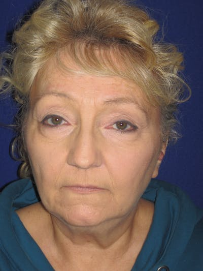 Facelift/Mini-Facelift Gallery - Patient 4890506 - Image 1