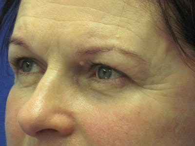 Browlift Gallery - Patient 4890520 - Image 1
