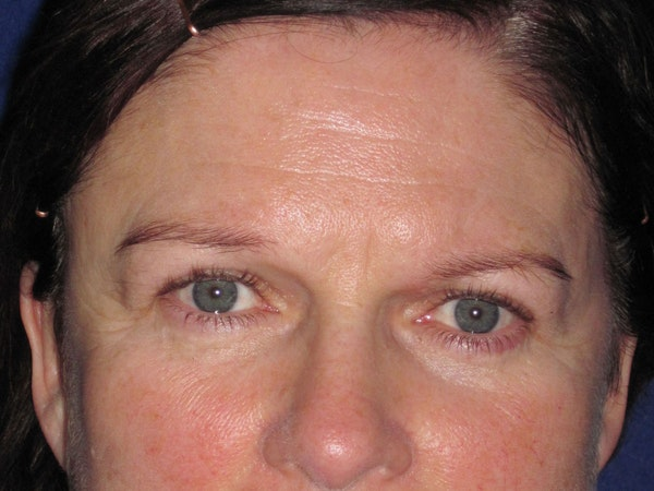 Browlift Gallery - Patient 4890520 - Image 3