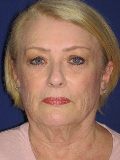 Facelift/Mini-Facelift Gallery - Patient 4890523 - Image 1