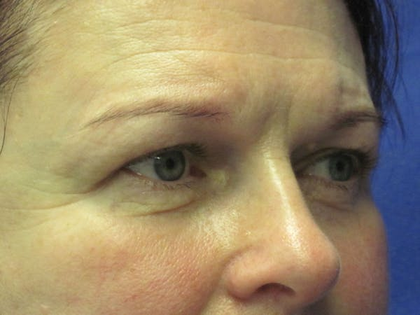 Browlift Gallery - Patient 4890520 - Image 5