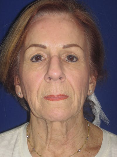 Facelift/Mini-Facelift Gallery - Patient 4890528 - Image 1
