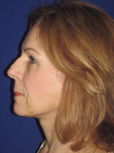 Facelift/Mini-Facelift Gallery - Patient 4890528 - Image 4