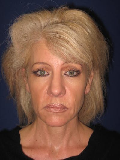 Facelift/Mini-Facelift Gallery - Patient 4890532 - Image 1