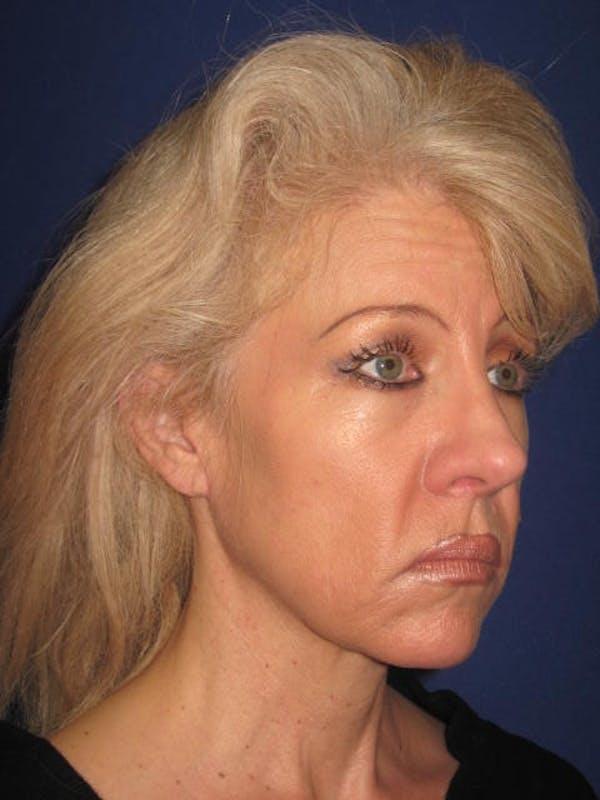 Facelift/Mini-Facelift Gallery - Patient 4890532 - Image 3