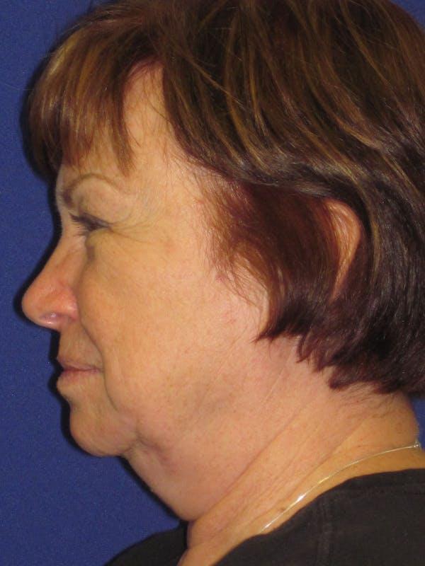 Facelift/Mini-Facelift Gallery - Patient 4890537 - Image 3