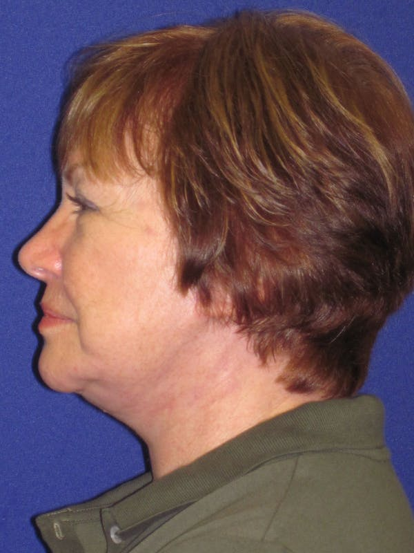 Facelift/Mini-Facelift Gallery - Patient 4890537 - Image 4