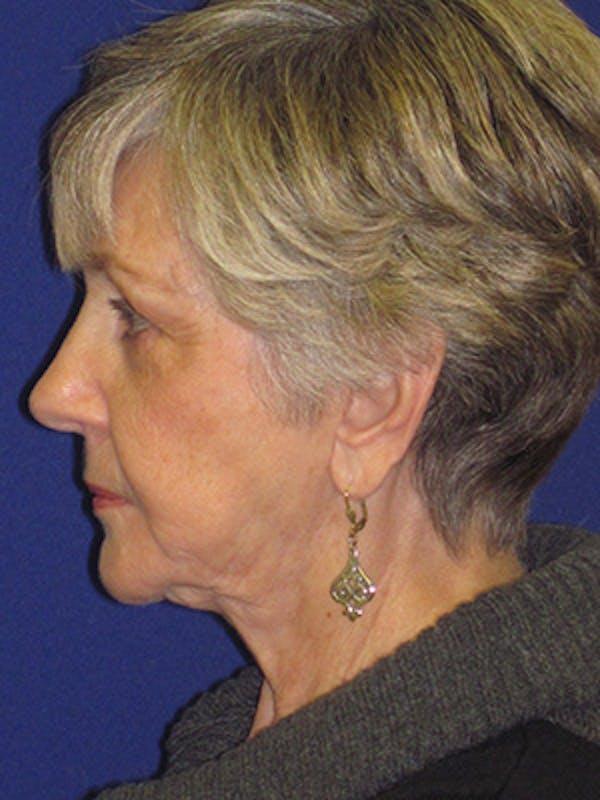 Facelift/Mini-Facelift Gallery - Patient 4890567 - Image 5