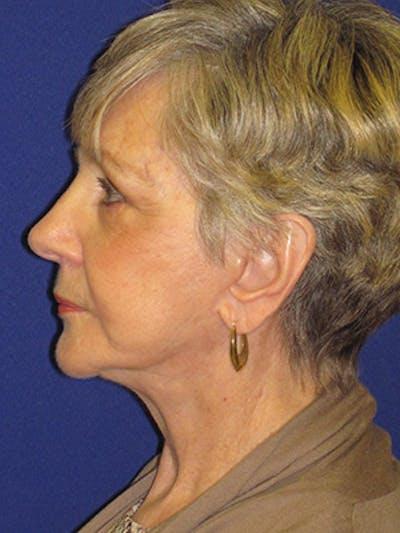 Facelift/Mini-Facelift Gallery - Patient 4890567 - Image 6