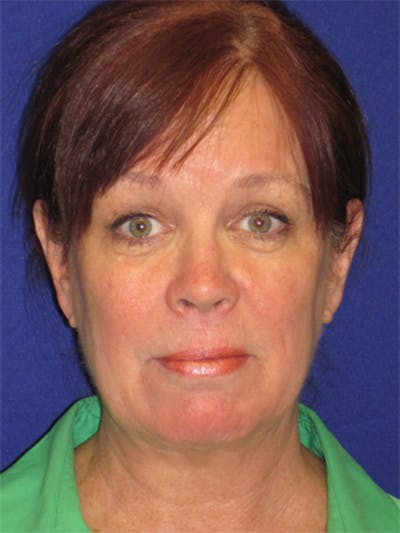 Facelift/Mini-Facelift Gallery - Patient 4890581 - Image 1
