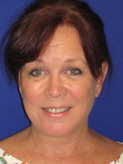 Facelift/Mini-Facelift Gallery - Patient 4890581 - Image 2