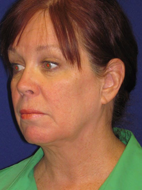 Facelift/Mini-Facelift Gallery - Patient 4890581 - Image 3