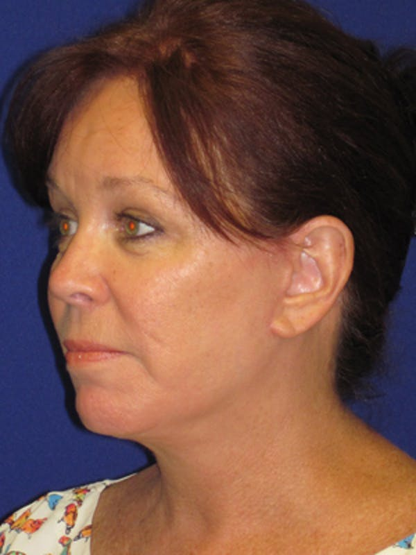 Facelift/Mini-Facelift Gallery - Patient 4890581 - Image 4