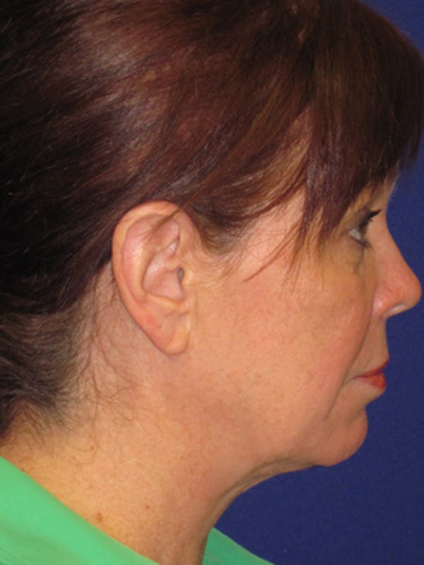 Facelift/Mini-Facelift Gallery - Patient 4890581 - Image 5