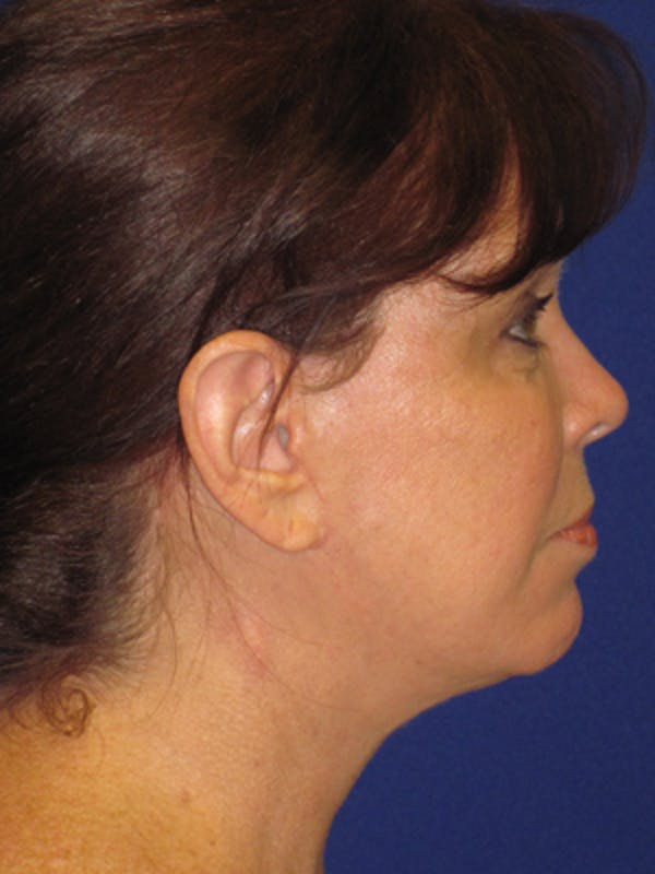 Facelift/Mini-Facelift Gallery - Patient 4890581 - Image 6