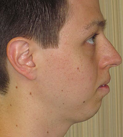 Chin Augmentation Gallery - Patient 4890583 - Image 1