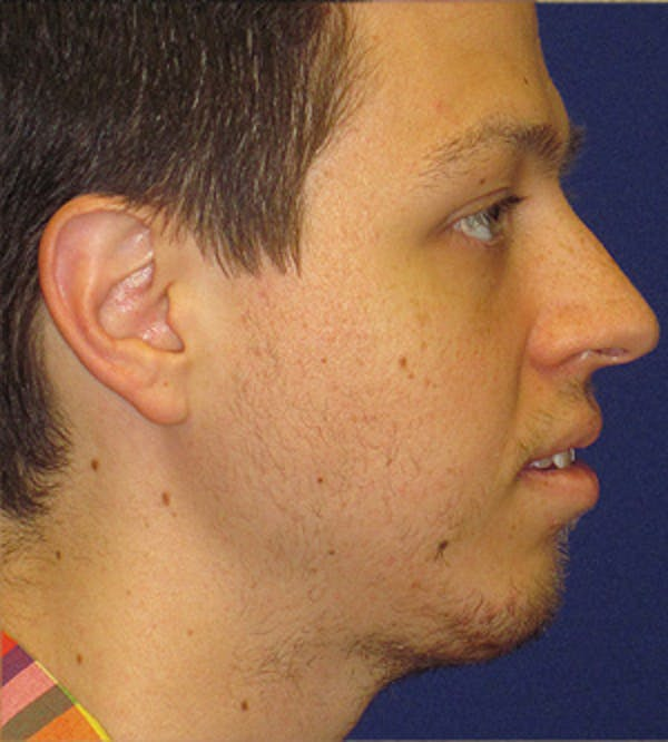 Chin Augmentation Gallery - Patient 4890583 - Image 2