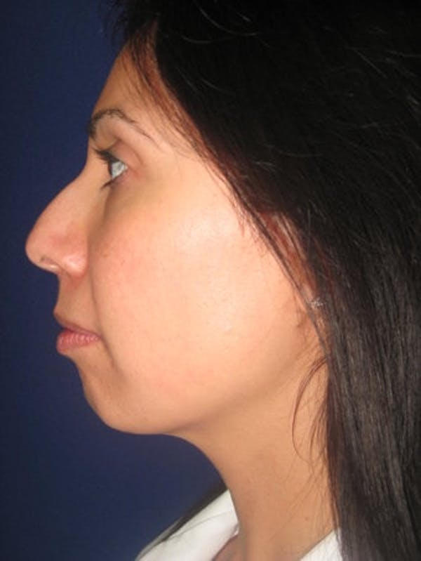 Chin Augmentation Gallery - Patient 4890588 - Image 1
