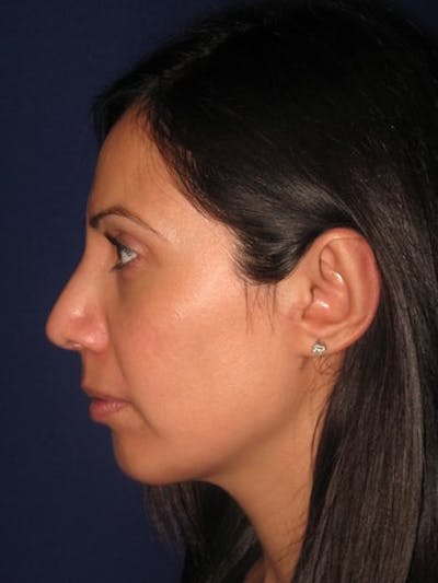 Chin Augmentation Gallery - Patient 4890588 - Image 2