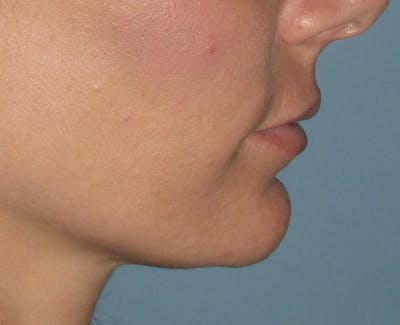 Chin Augmentation Gallery - Patient 4890590 - Image 1