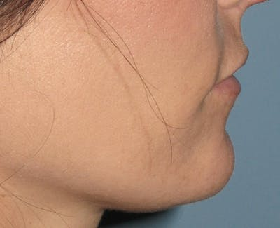 Chin Augmentation Gallery - Patient 4890590 - Image 2