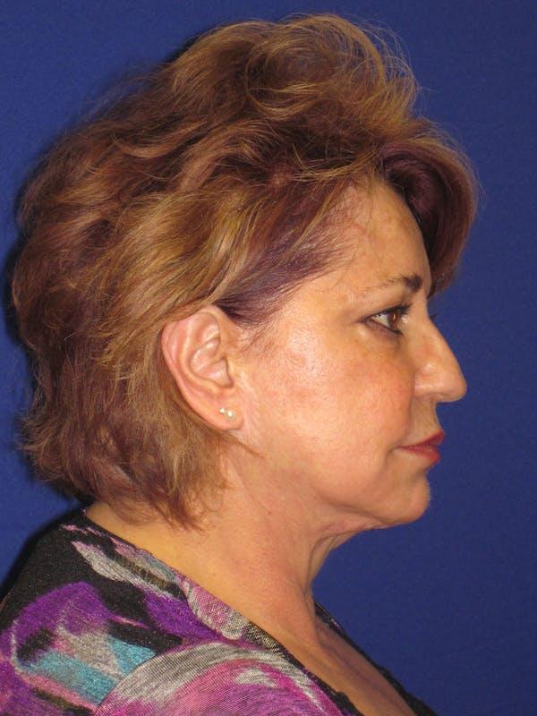 Facelift/Mini-Facelift Gallery - Patient 4890601 - Image 3