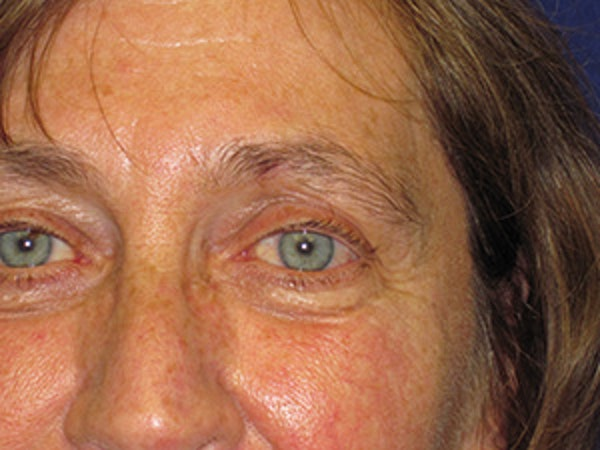 Facial Reconstruction Gallery - Patient 4890599 - Image 2