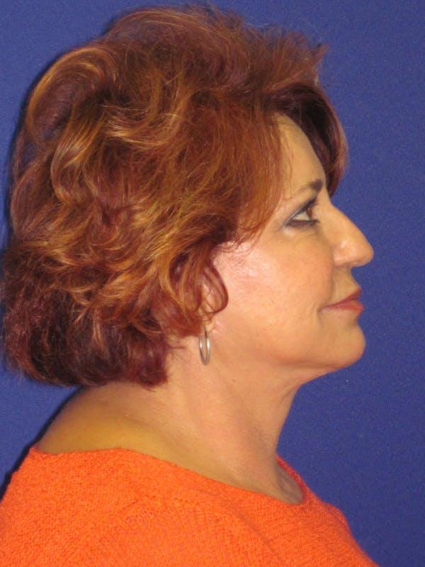 Facelift/Mini-Facelift Gallery - Patient 4890601 - Image 4