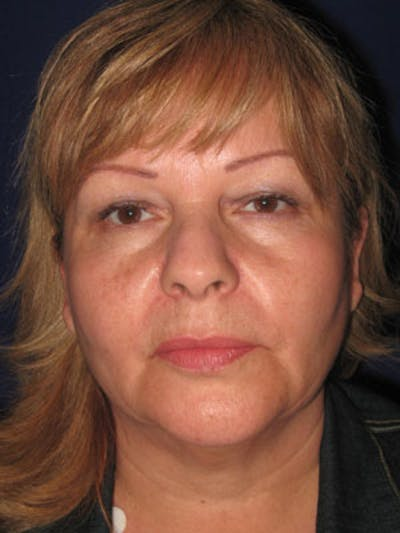 Facelift/Mini-Facelift Gallery - Patient 4890605 - Image 1