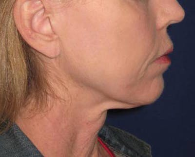 Facelift/Mini-Facelift Gallery - Patient 4890618 - Image 1