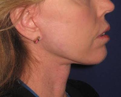 Facelift/Mini-Facelift Gallery - Patient 4890618 - Image 2