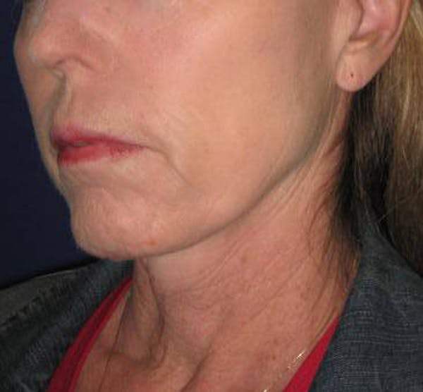 Facelift/Mini-Facelift Gallery - Patient 4890618 - Image 3