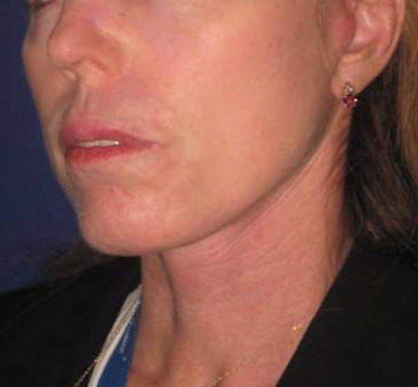 Facelift/Mini-Facelift Gallery - Patient 4890618 - Image 4