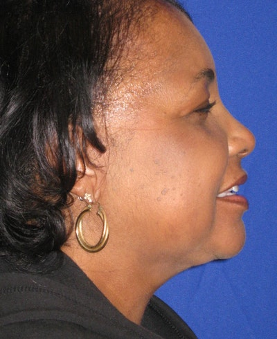 Neck Liposuction Gallery - Patient 4890620 - Image 2