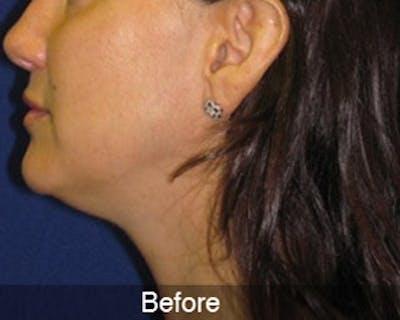 Neck Liposuction Gallery - Patient 4890622 - Image 2