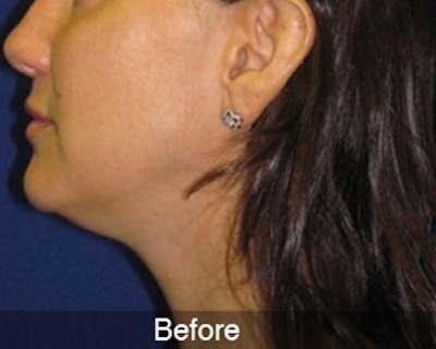 Neck Liposuction Gallery - Patient 4890622 - Image 1