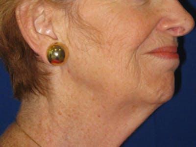 Facelift/Mini-Facelift Gallery - Patient 4890637 - Image 1