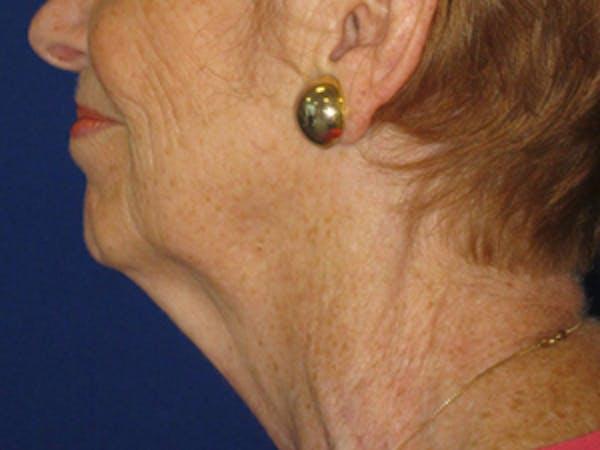 Facelift/Mini-Facelift Gallery - Patient 4890637 - Image 3