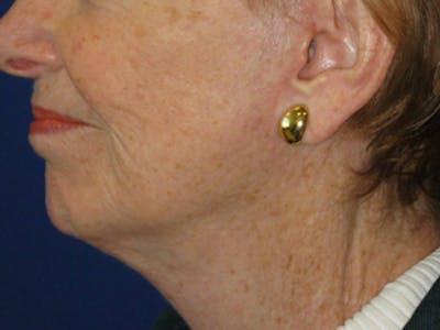 Facelift/Mini-Facelift Gallery - Patient 4890637 - Image 4