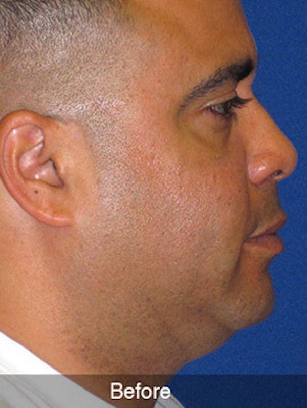Neck Liposuction Gallery - Patient 4890659 - Image 3