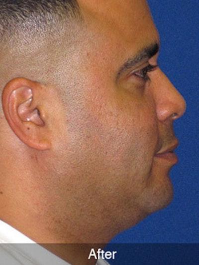 Neck Liposuction Gallery - Patient 4890659 - Image 4