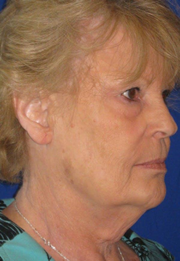 Facelift/Mini-Facelift Gallery - Patient 4890662 - Image 3