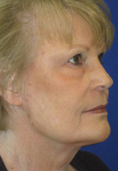 Facelift/Mini-Facelift Gallery - Patient 4890662 - Image 4