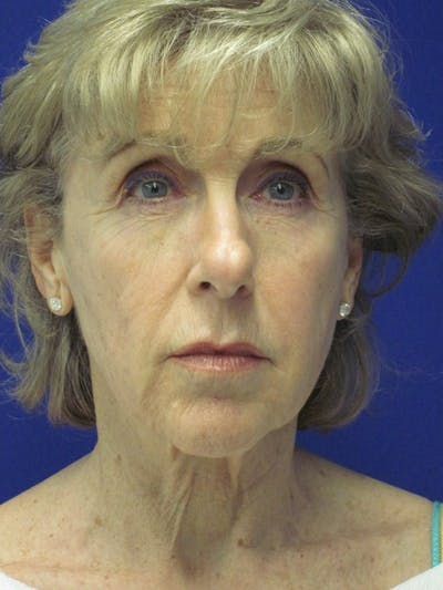 Facelift/Mini-Facelift Gallery - Patient 4890673 - Image 1