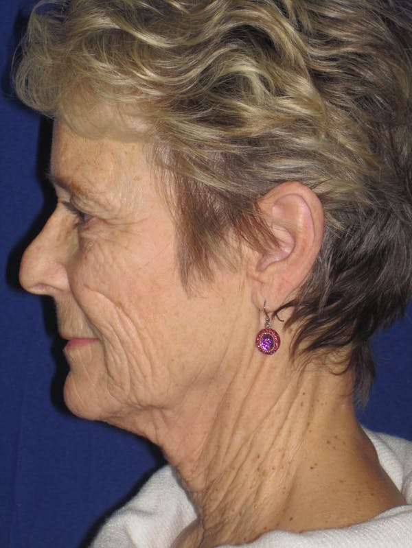 Facelift/Mini-Facelift Gallery - Patient 4890705 - Image 5