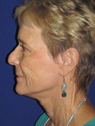 Facelift/Mini-Facelift Gallery - Patient 4890705 - Image 6