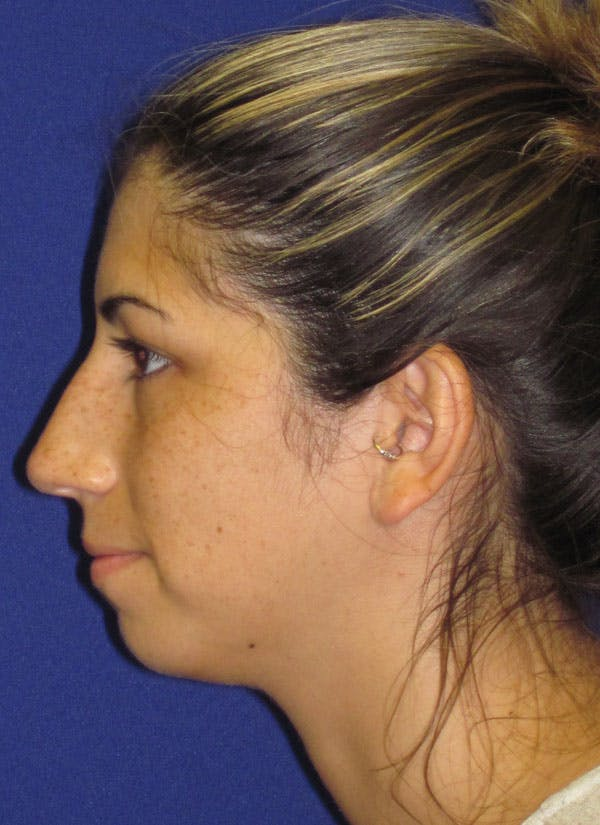 Before & after Rhinoplasty in Philadelphia 1
