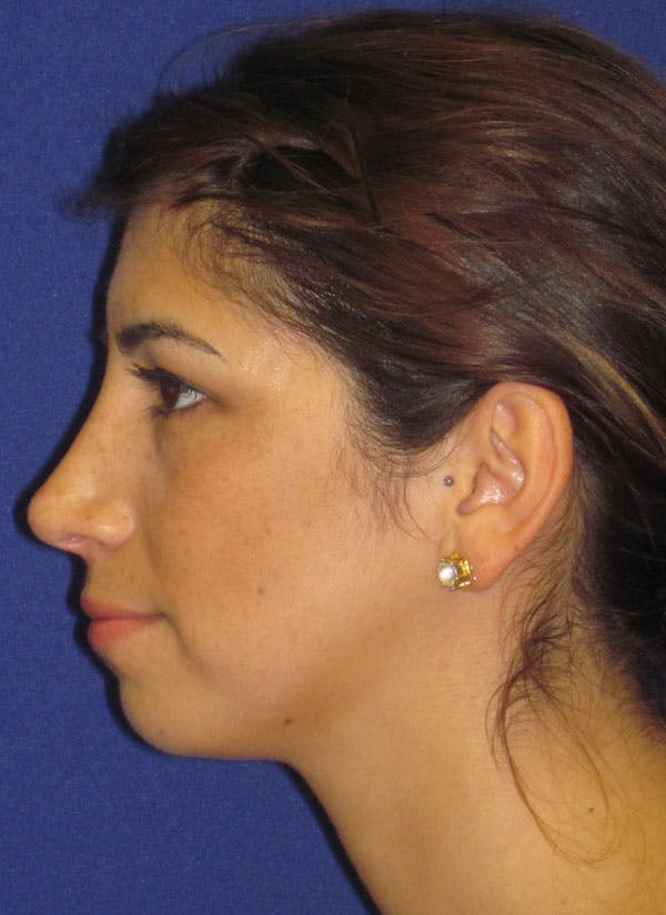 Before & after Rhinoplasty in Philadelphia 1