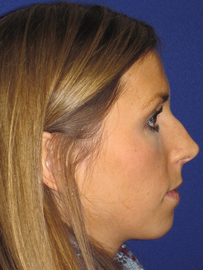 "Non-Surgical ""Liquid"" Rhinoplasty Gallery - Patient 4890748 - Image 1"